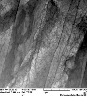 Исследование микроструктуры аустенитной нержавеющей стали с помощью детектора прошедших электронов TESCAN